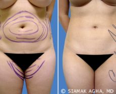 Orange County Liposuction Patient 5