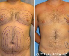 Orange County Liposuction Patient 6