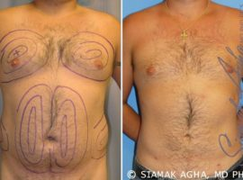 Orange County Gynecomastia Patient 1