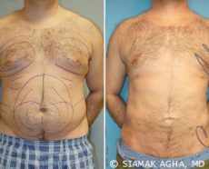 Orange County Gynecomastia Patient 2