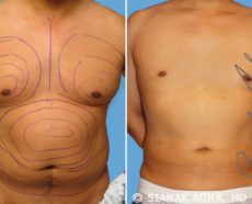 Orange County Gynecomastia Patient 3