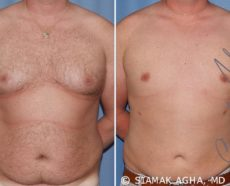Orange County Gynecomastia Patient 5