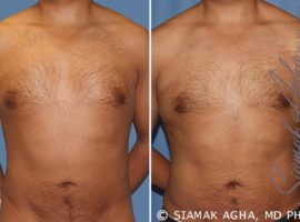 Orange County Gynecomastia Patient 6