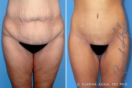 Orange County Spiral Thigh Lift Patient 1