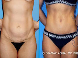 Orange County Tummy Tuck Patient 2