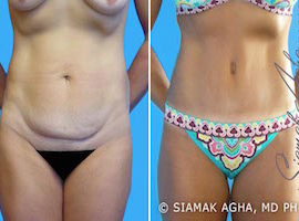 Orange County Tummy Tuck Patient 4