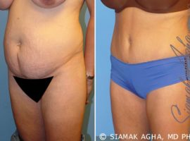 Orange County Tummy Tuck Patient 5